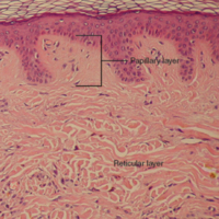 Layers of the Dermis.jpg