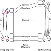 Progression from Epiphyseal Plate to Epiphyseal Line.jpg