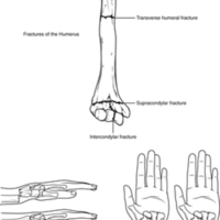 Fractures of the Humerus and Radius.jpg