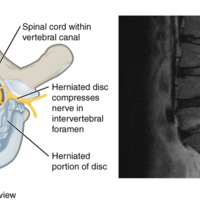 Herniated Intervertebral Disc.jpg